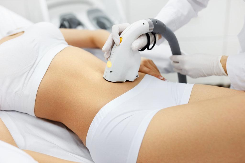 kobieta ma wykonywany zabieg na brzuchu