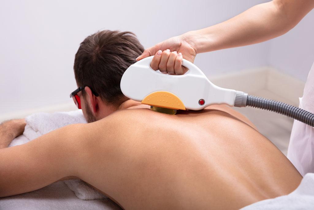 mężczyzna ma wykonywany zabieg laserem na plecach